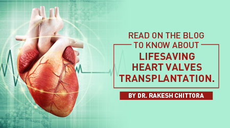heart_valves_transplantation_small