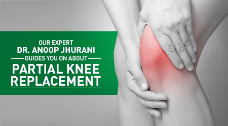 knee_replacement_small