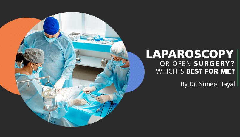 Laparoscopy or open surgery? Which is best for me?