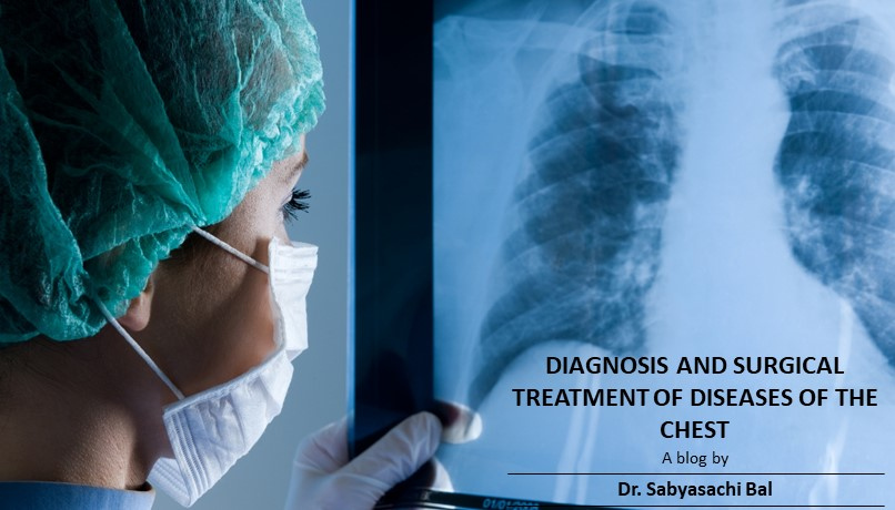 The practice of thoracic surgery in India; challenges, scope and opportunities