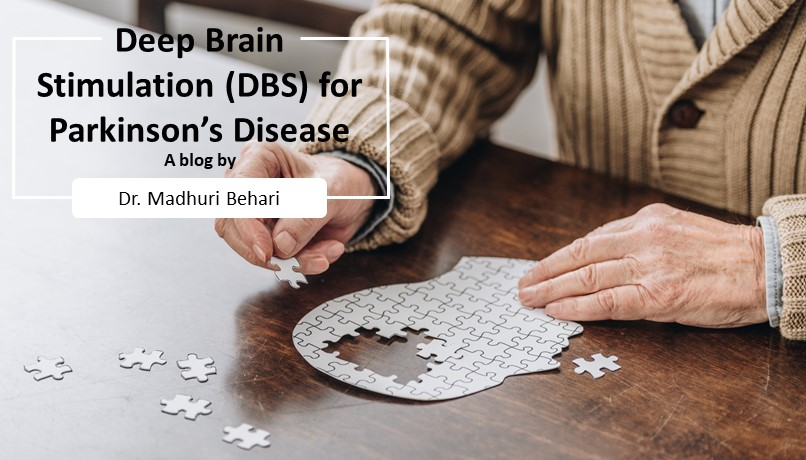 DBS for Parkinsons Disease
