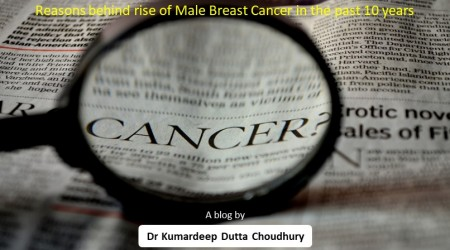 Reasons behind rise of Male Breast Cancer in the past 10 years