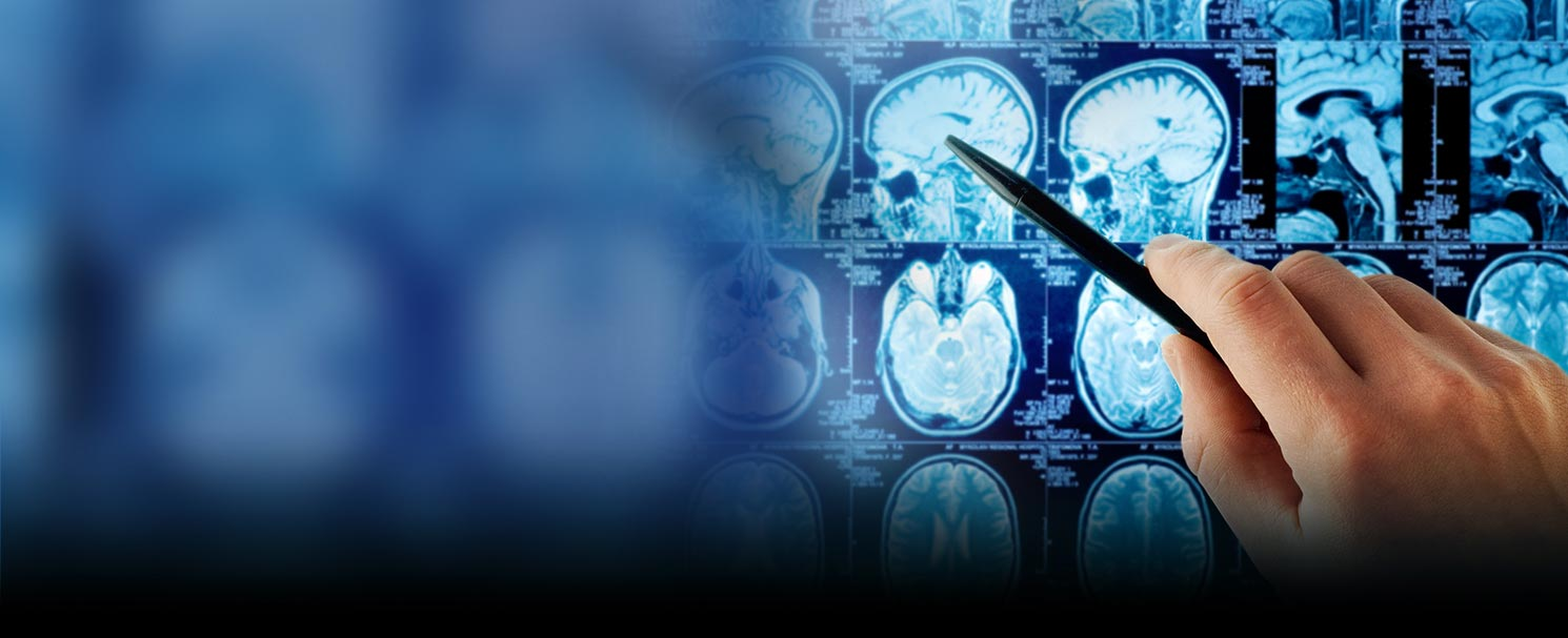 Best Brain Hospitals in India | Top Epilepsy Hospitals in India