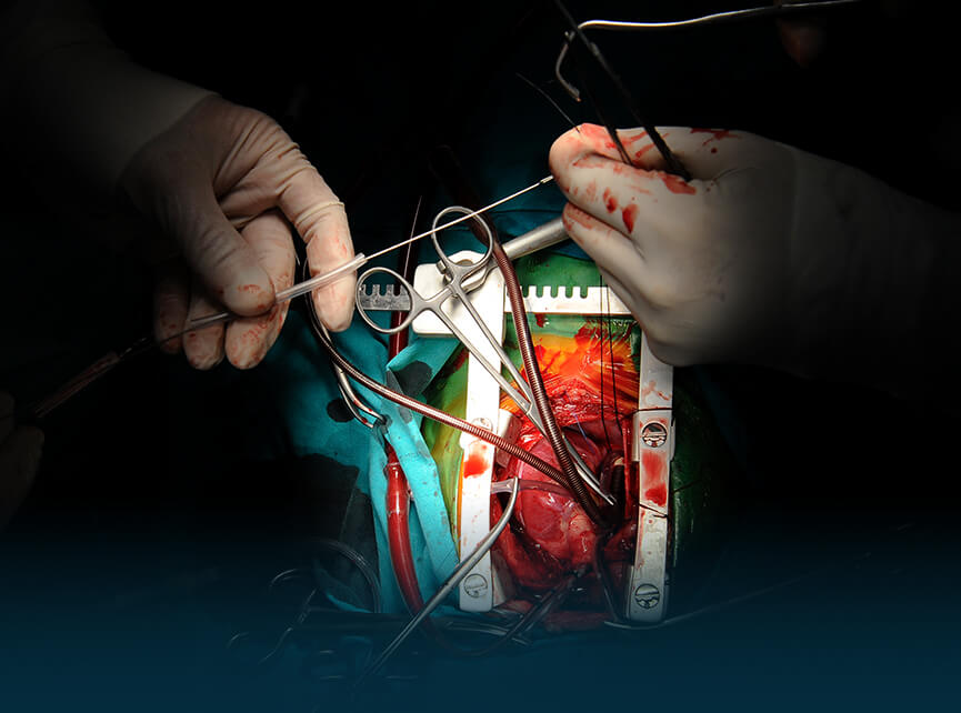Best CTVS Hospitals in India   Top Cardiac Surgery Hospitals in India